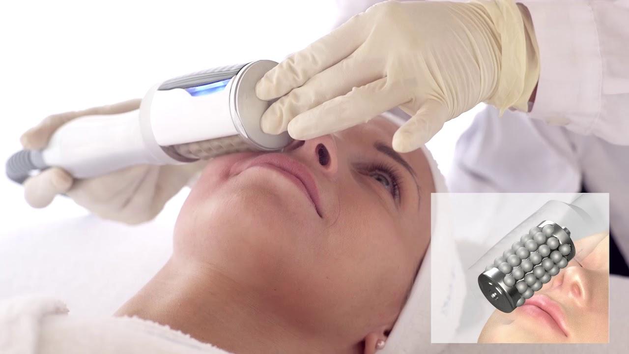 EVA Hendospheres Therapy Viso tecnologico
